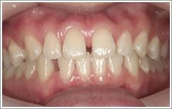歯間離開・空隙歯列