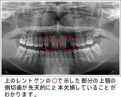 永久歯の先天的欠如・埋伏歯