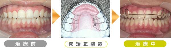 症例-上顎前突