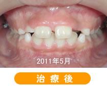 下顎前突矯正症例