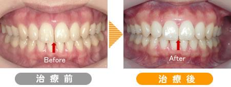 歯間離開・空隙歯列矯正症例