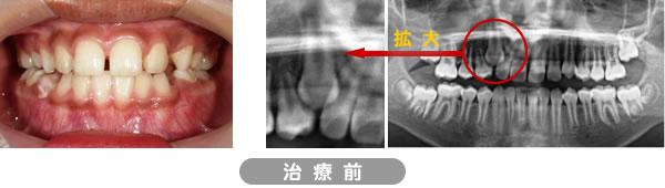 埋伏歯矯正治療症例