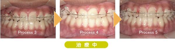 埋伏歯矯正歯科