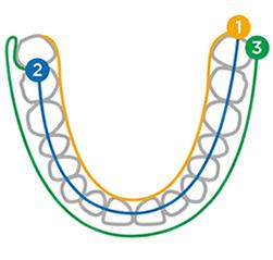 スキャンしずらい箇所、例えば、最後臼歯や光沢のあるマテリアルなど、困難だったシチュエーションでもPrimescanなら問題ありません